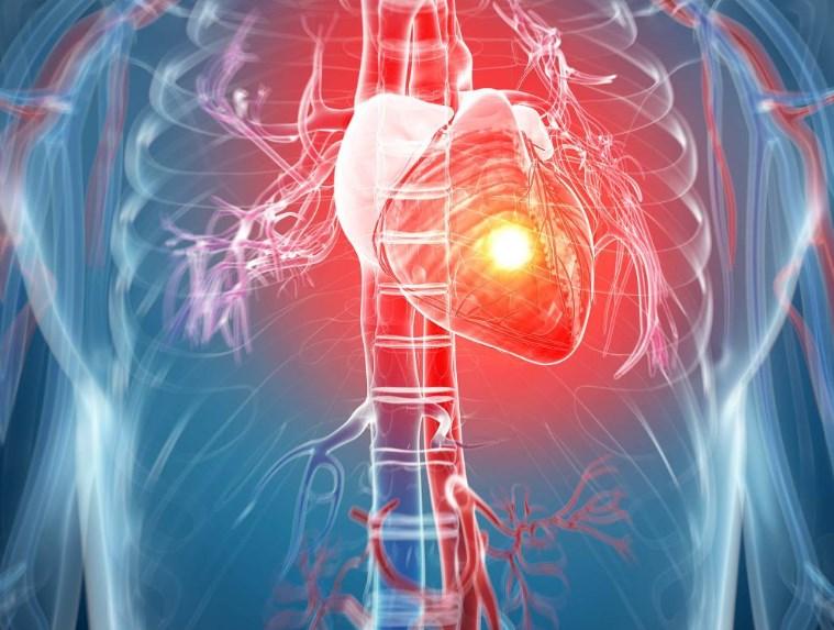 Гіпертрофія лівого шлуночка у хворих на артеріальну гіпертензію