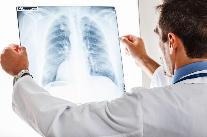 Ідіопатичний гемосидероз легень
