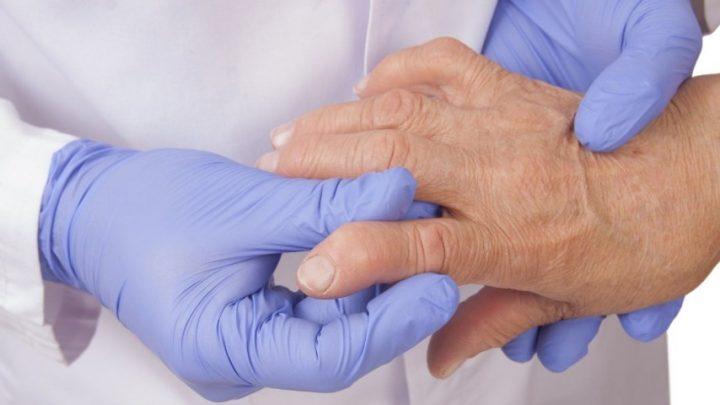 Причини, симптоми і лікування гіперурикемії