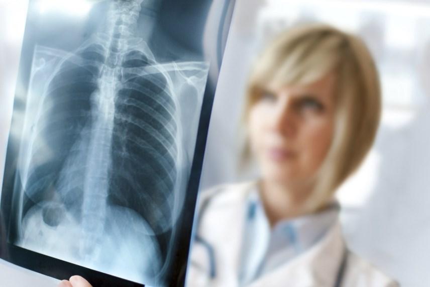Гідроторакс: симптоми, причини, діагностика та лікування