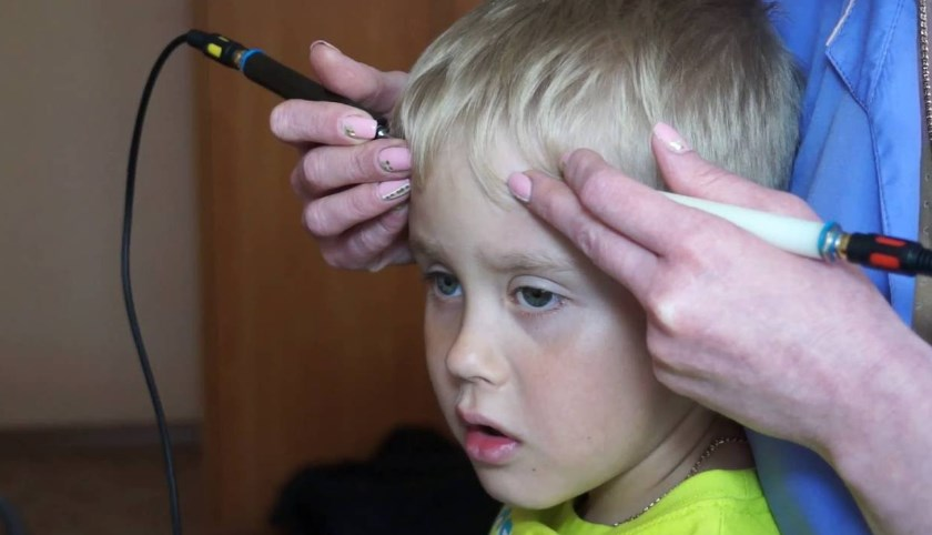 Гідроцефалія: причини, симптоми, діагностика, лікування