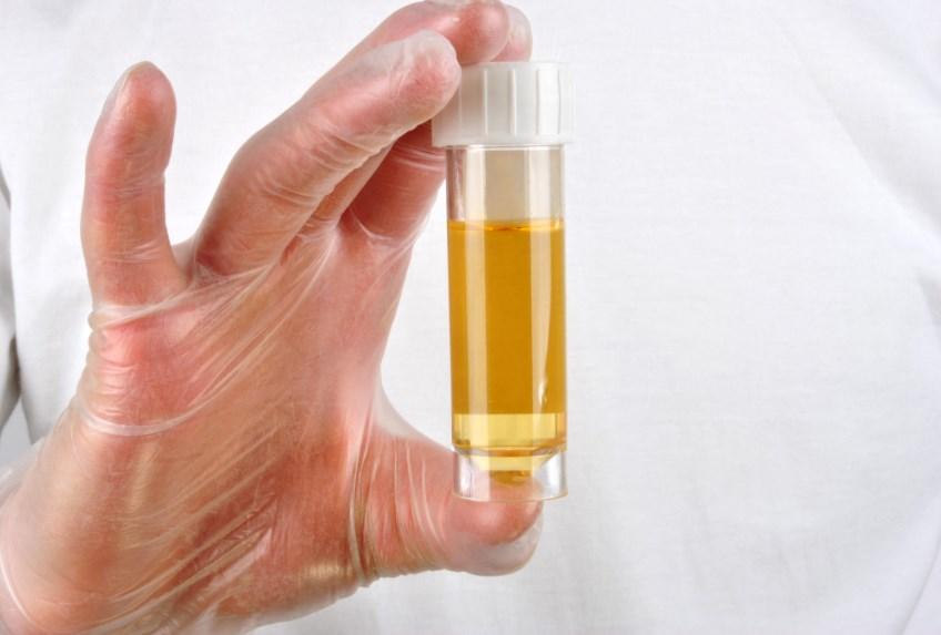 Гіпоальдостеронізм: причини захворювання, основні симптоми, лікування і профілактика