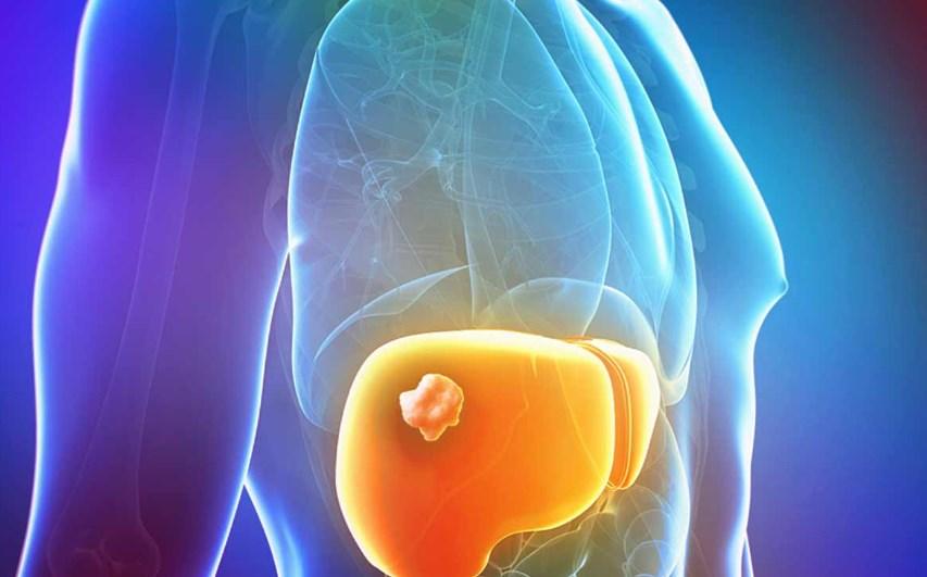 Гепатоцеллюлярна карцинома