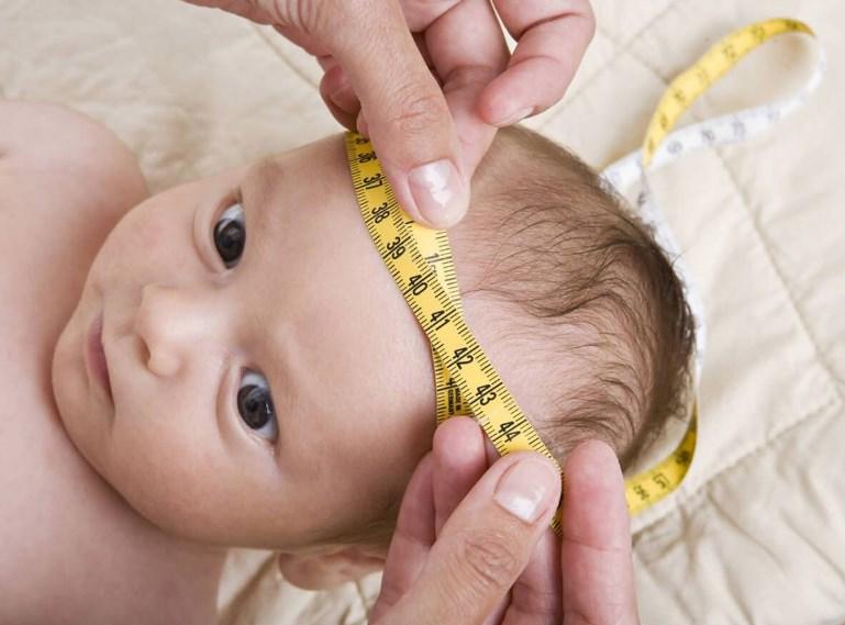 Гідроцефалія головного мозку у дітей