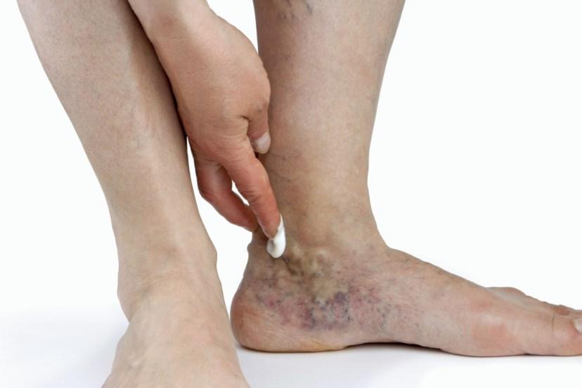 Васкуліт: Чому запалюються стінки кровоносних судин і що робити