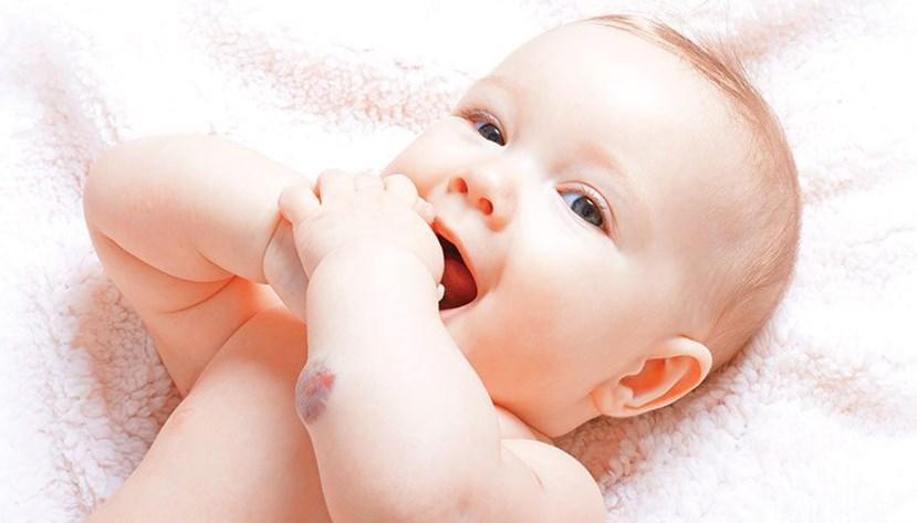 Як лікують дитячі (інфантильні) гемангіоми?
