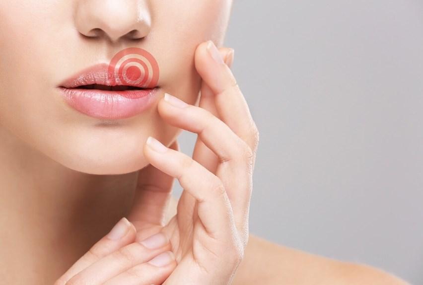 Герпес на губах: причини захворювання, основні симптоми, лікування і профілактика