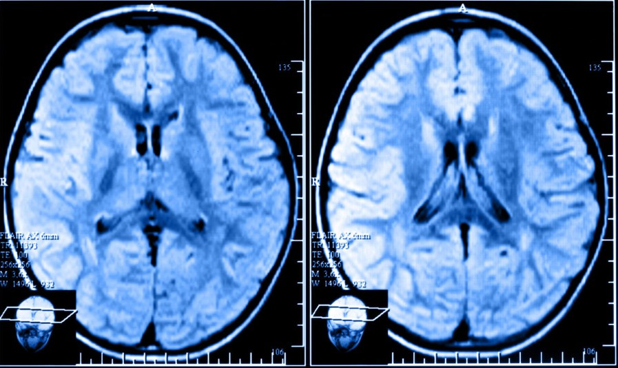 МРТ при атрофії головного мозку