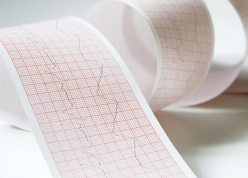 Діагностика та лікування тріпотіння передсердь
