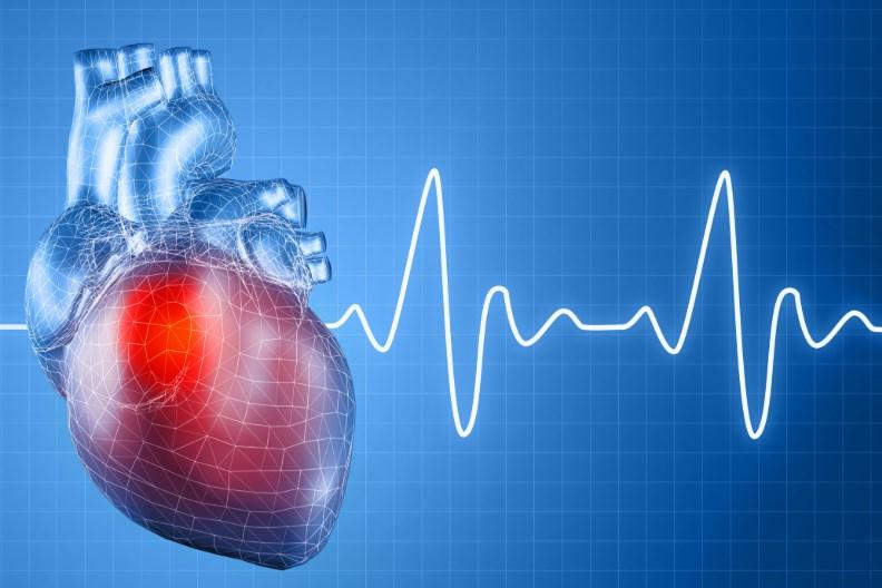 Дилатаційна кардіоміопатія (ДКМП)