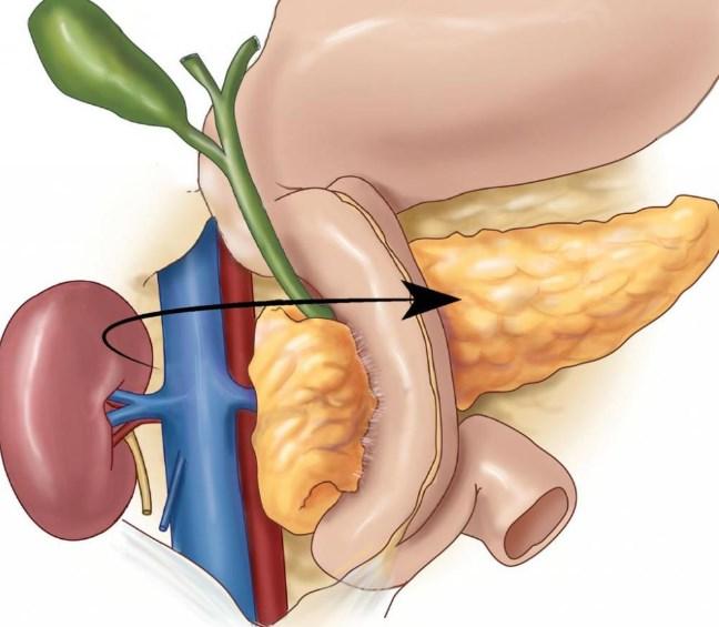 Дискінезія жовчних шляхів: симптоми, дієта, лікування