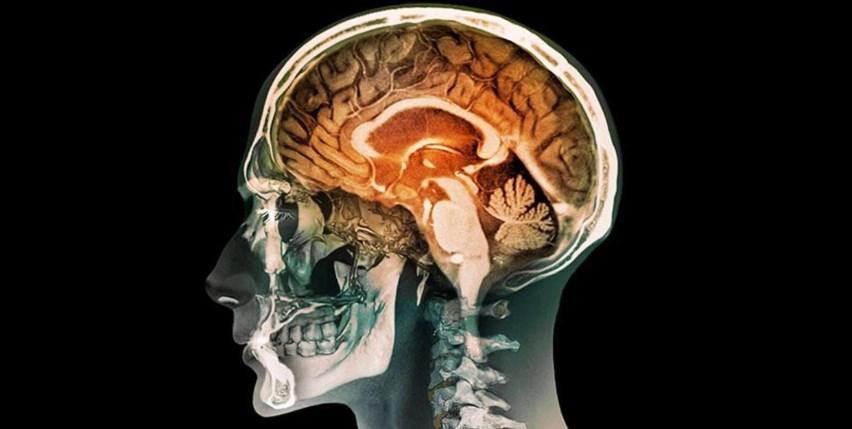 Демиелинизирующее захворювання головного мозку