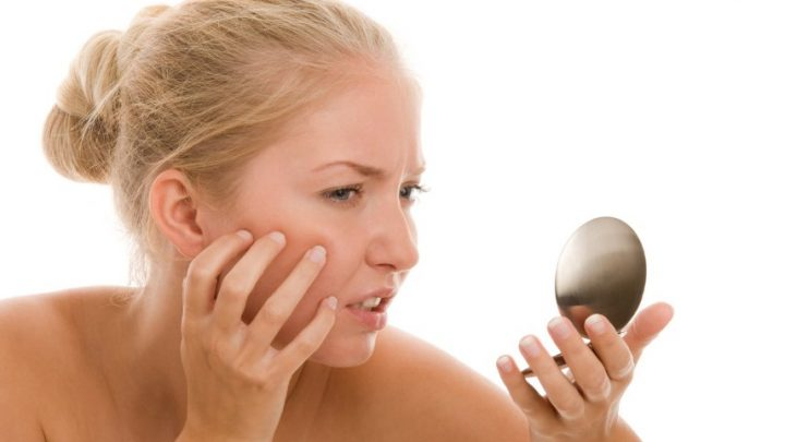 Демодекоз: причини захворювання, основні симптоми, лікування і профілактика
