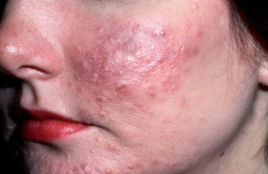 Демодекоз на обличчі: причини, симптоми й лікування