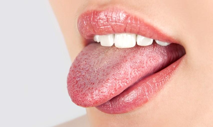 Симптоми, причини і лікування глоситу язика