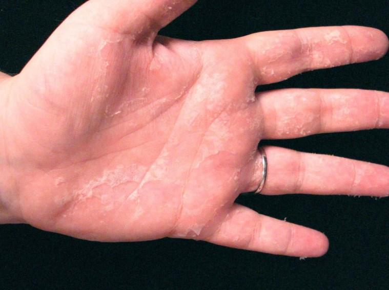 Дисгідроз - лікування хвороби