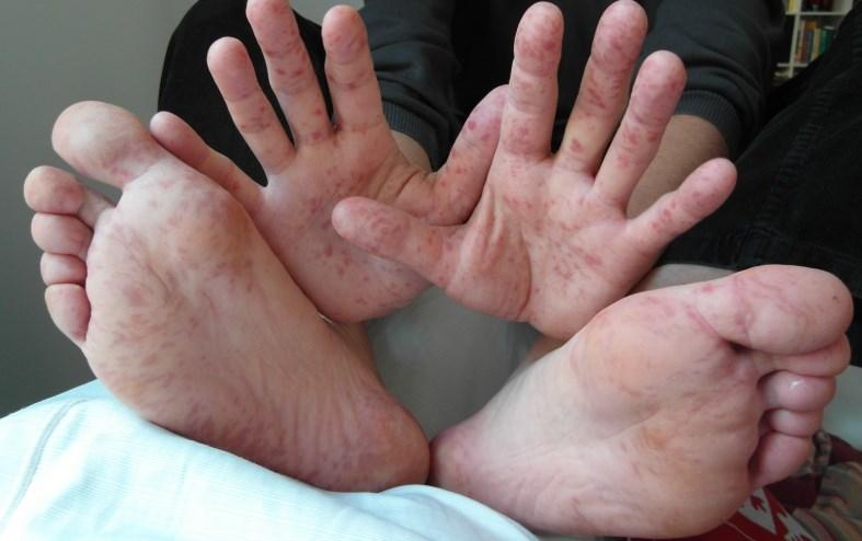 Дисгідроз: причини, симптоми, діагностика, лікування