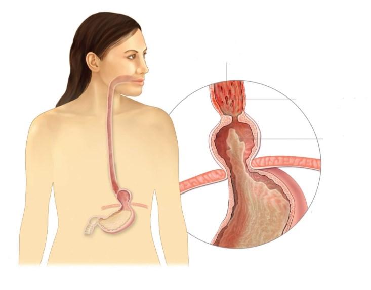Дискінезія стравоходу: симптоми і лікування