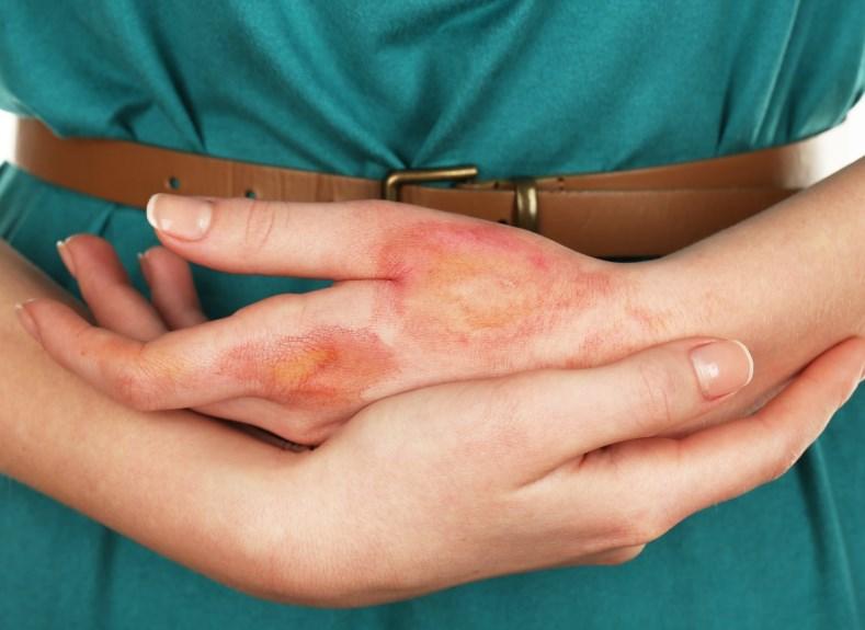 Дерматоз – лікування, причини, симптоми і ознаки захворювання