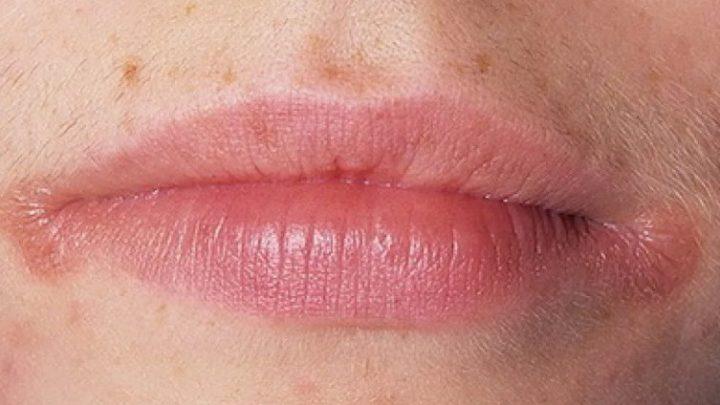 Заїди в куточках рота: причини і лікування
