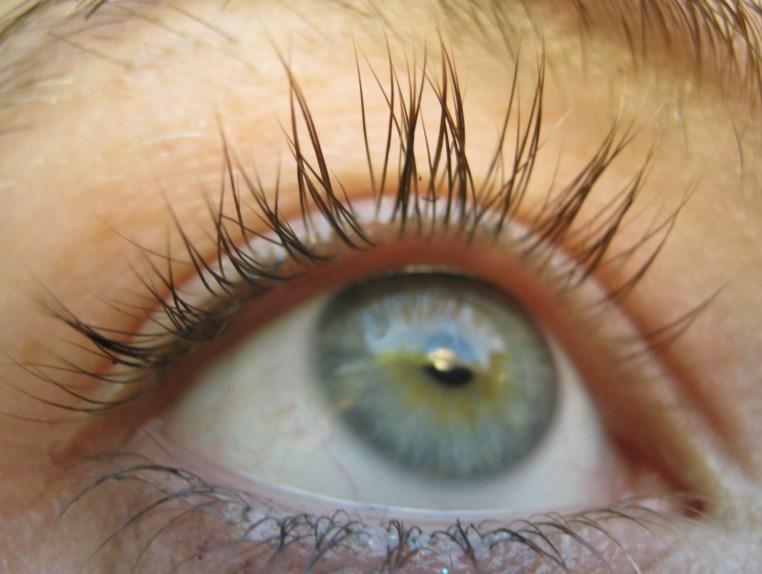 Дістіхіаз: причини, симптоми, лікування подвійного ряду вій