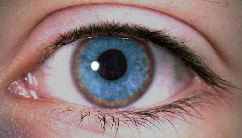 Дістіхіаз і лавандові очі