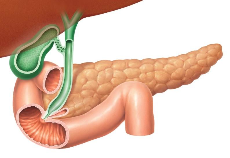 Инсулинома: причини, симптоми
