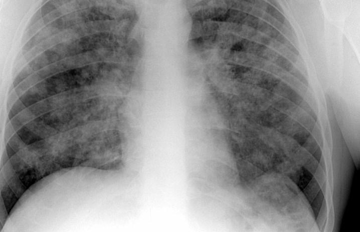 Ідіопатичний фіброзивний альвеоліт: питання діагностики, принципи лікування