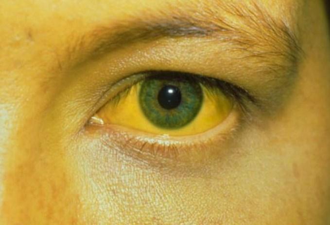 Жовта лихоманка: що це, симптоми, щеплення, лікування