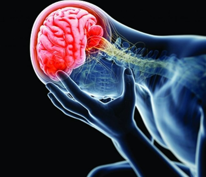 Дифузне аксональное пошкодження головного мозку