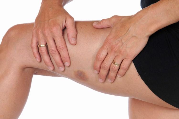 Тромбоцитопенія – види, ступені захворювання, принципи