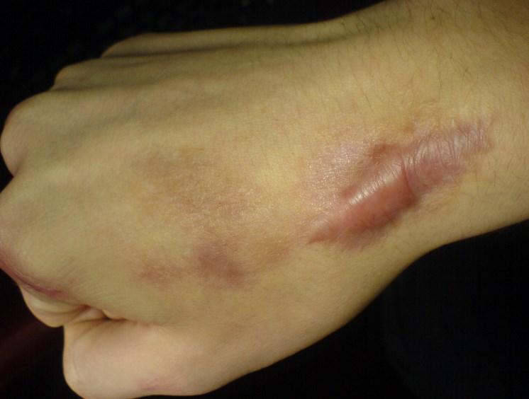 Келоїдні рубці: причини і лікування
