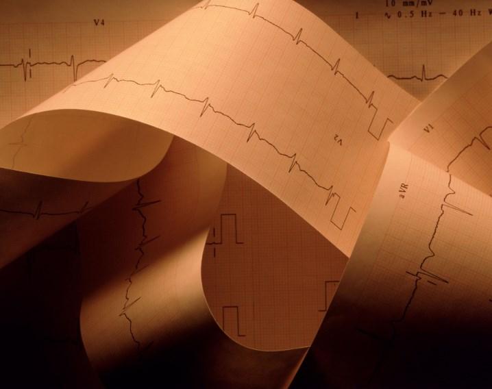 Кардіоміопатія: причини, симптоми, діагностика