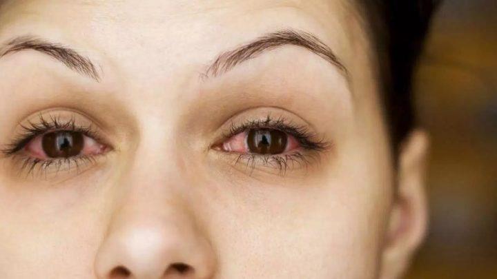 Кератокон'юнктивіт: причини захворювання, основні симптоми, лікування і профілактика