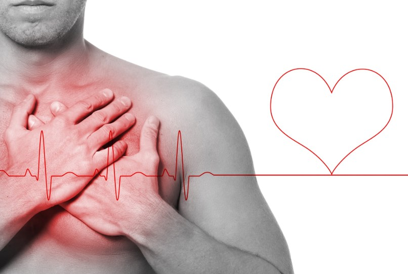 Гострий інфаркт міокарда