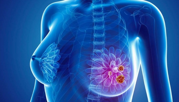 Рак молочної залози. Діагностика та лікування