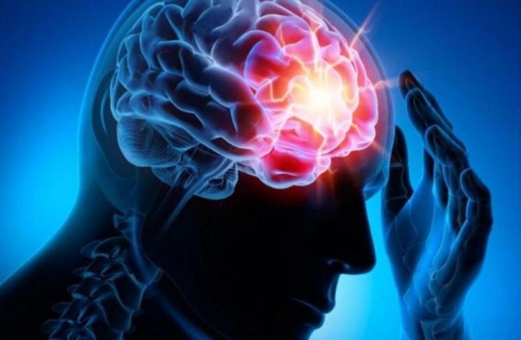 Що таке ішемічний інсульт: причини, форми