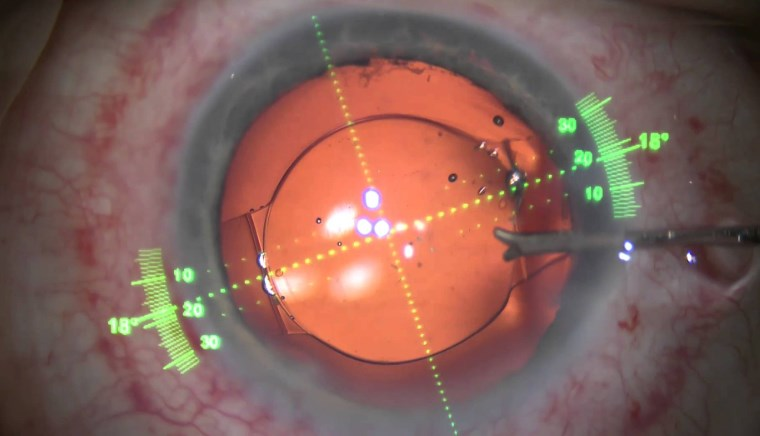 Хірургічне лікування катаракти