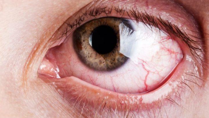 Кератит: причини захворювання, основні симптоми, лікування і профілактика