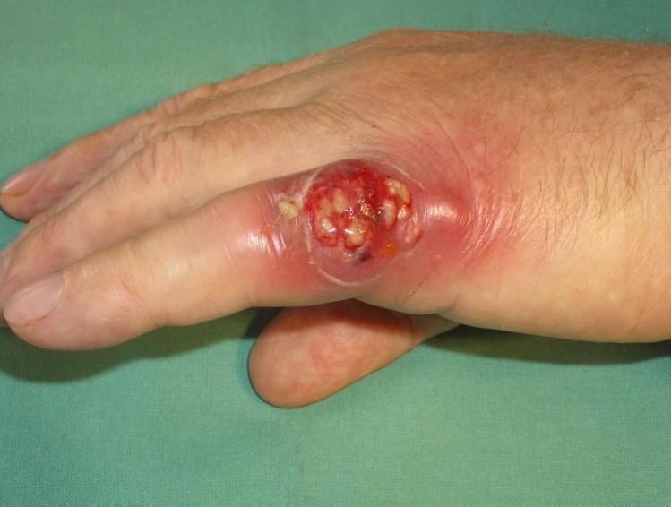 Карбункул: причини захворювання, основні симптоми, лікування і профілактика