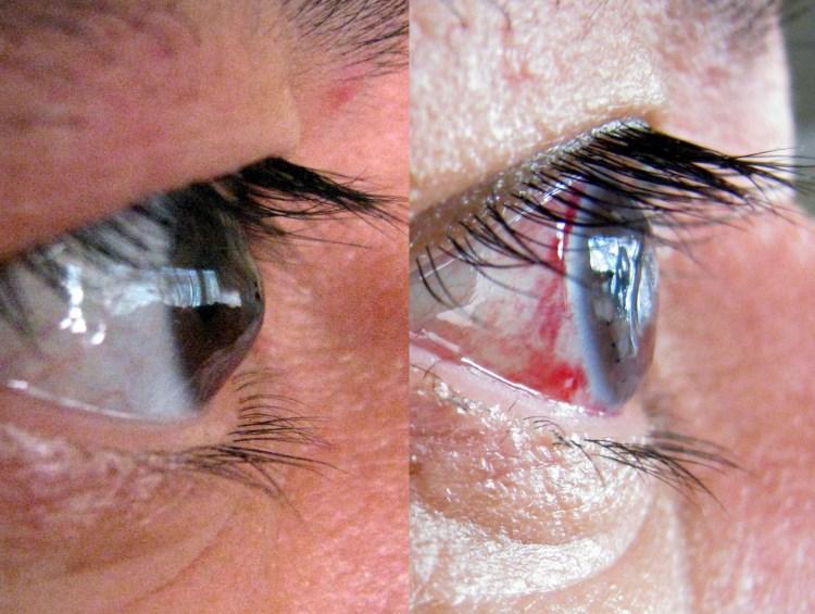 Кератоглобус - симптоми. хвороби очей