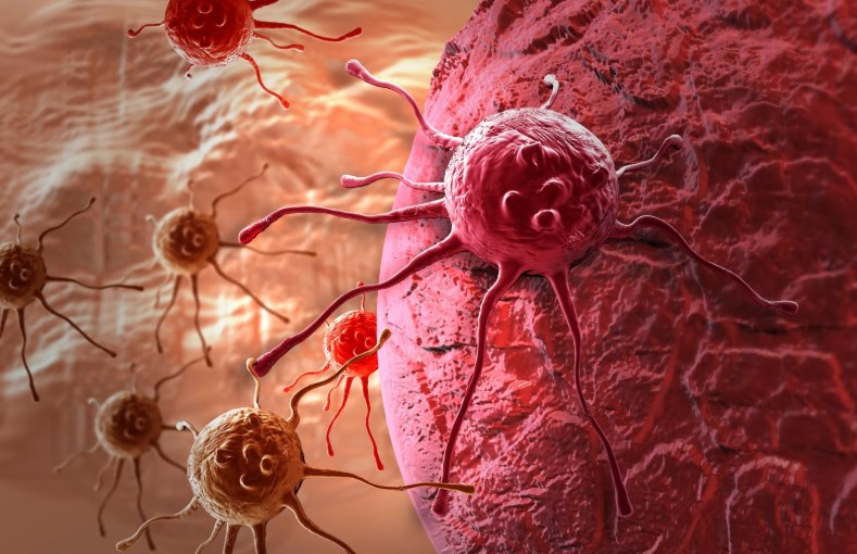 Кіста яєчника: головні аспекти лікування і діагностики