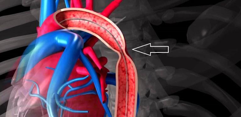 Коарктація аорти | Ендоваскулярне лікування вроджених вад серця