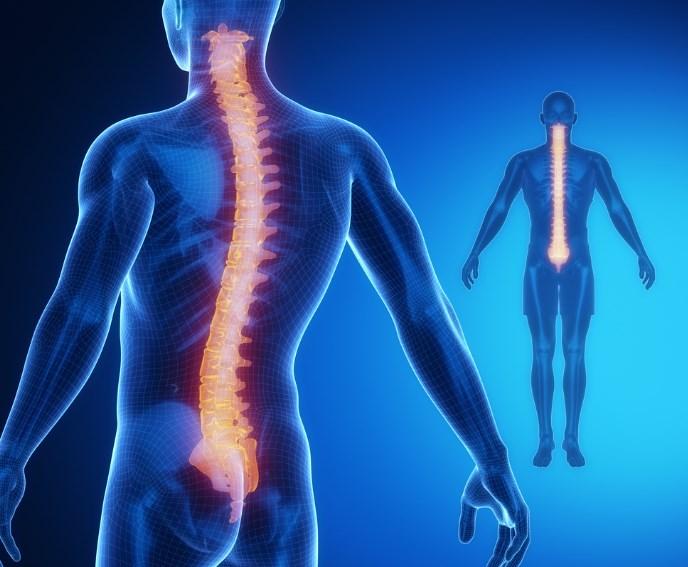 Кіфоз: причини захворювання, основні симптоми, лікування і профілактика