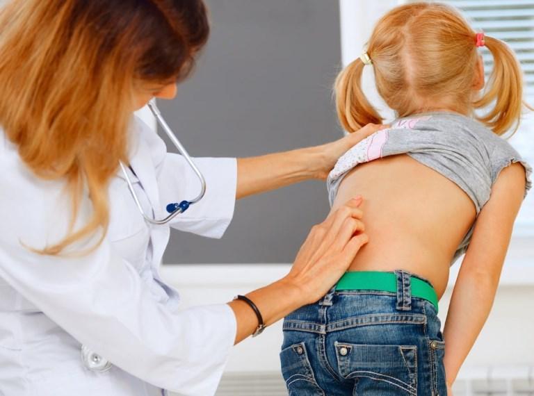 Кіфосколіоз хребта і його лікування