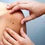 Контагіозний молюск: причини захворювання, основні симптоми, лікування і профілактика