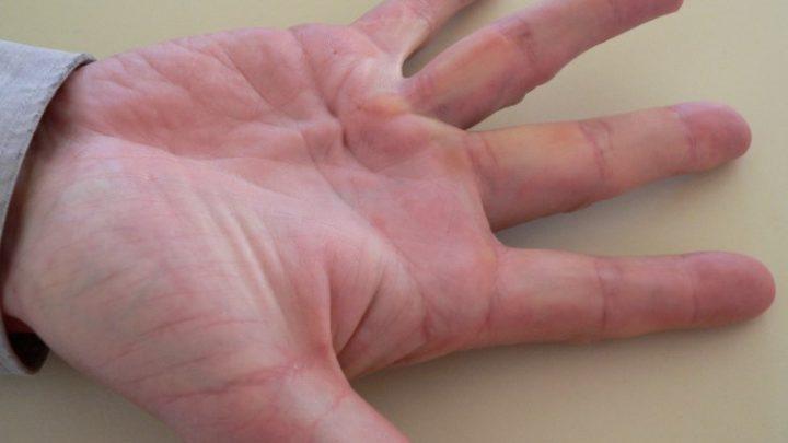 Контрактура: причини захворювання, основні симптоми, лікування і профілактика