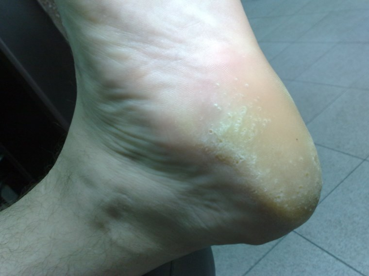 Мелкоточечная кератоліз – причини, симптоми, діагностика