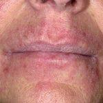 Криптококоз: причини захворювання, основні симптоми, лікування і профілактика