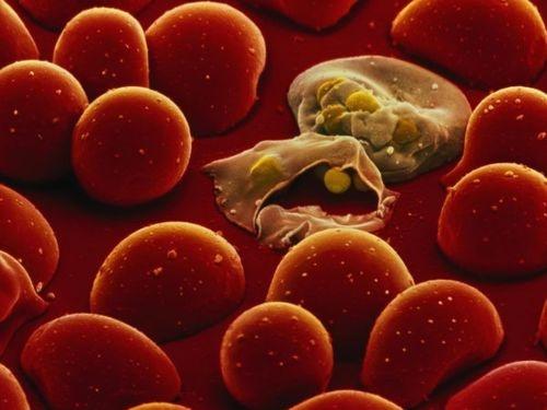 Криптоспоридіоз - Інфекційні хвороби